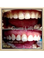 Gum Contouring and Reshaping - Doctors Ocariza Dental Clinic