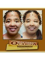 Dental Bridges - Doctors Ocariza Dental Clinic