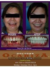 Full Dentures - Doctors Ocariza Dental Clinic