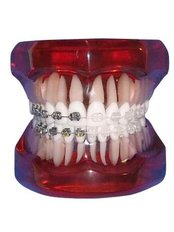 Braces - Doctors Ocariza Dental Clinic