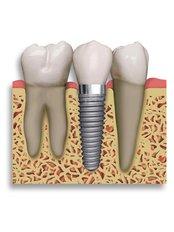 Dental Implants - Doctors Ocariza Dental Clinic