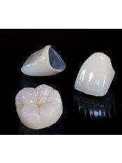 Zahnkronen - Victoria Clinic