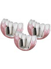 Zahnimplantate - Victoria Clinic