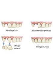 Zahnbrücken - Victoria Clinic