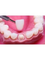 Dental Crowns - Implantis Dental Clinic