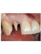 Zirconia Crown - Implantis Dental Clinic