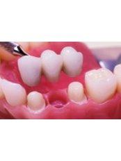 Dental Bridges - Implantis Dental Clinic
