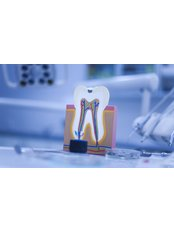 Root Canals from  - NOVA STOMATOLOGIA