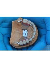 Dentures from  - NOVA STOMATOLOGIA