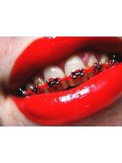 Adult Braces - ARTDENT Beauty & Care Dentistry