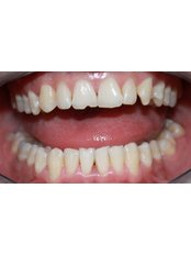 Teeth whitening  - Clinica Stomatologica Dentastic
