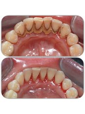 Teeth Cleaning - Clinica Stomatologica Dentastic
