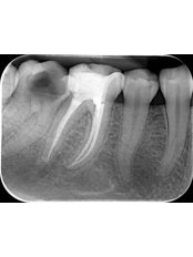 Root canals - Clinica Stomatologica Dentastic