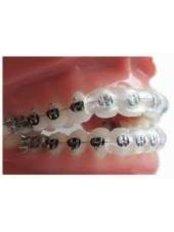 Braces - Best Dental Implant Dent Tehnic
