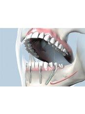 Immediate Implant Placement - Dent Estet Clinic