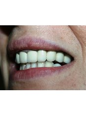 reconstruction the damage teeth - Happy Smile