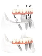 Immediate Implant Placement - Impladent Dental Clinic