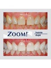 Teeth Whitening - CENTRUL STOMATOLOGIC ZORILOR- DR.TUDOR POMANA