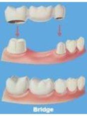 Dental Bridges - CENTRUL STOMATOLOGIC ZORILOR- DR.TUDOR POMANA