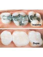 Dentist Consultation - CENTRUL STOMATOLOGIC ZORILOR- DR.TUDOR POMANA