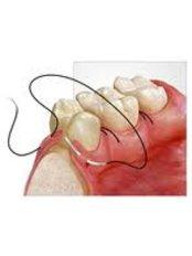 Oral and Maxillofacial Surgeon Consultation - CENTRUL STOMATOLOGIC ZORILOR- DR.TUDOR POMANA