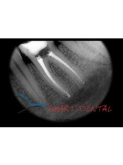 Endodontic Retreatment - Smart Dental