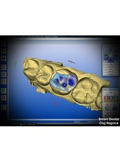 Cerec CAD CAM Restoration Design - Smart Dental