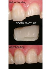 Bonding procedure in tooth fracture - Smart Dental