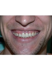 Dental Implants - PassionateClinic