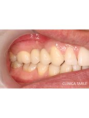 Porcelain Bridge - SMILE Dental Clinic