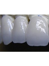 Veneers - DentalTech dental labor romania