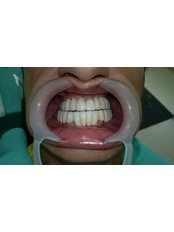 Restoration of Implants - Cvejanovic
