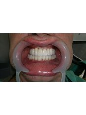 Dental Implants - Cvejanovic