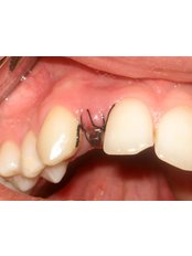 Mini Implants - Dental Clinic ORTO