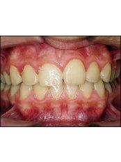 Metal Braces - Dental Clinic ORTO