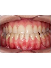 Accelerated Braces™ - Dental Clinic ORTO