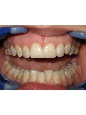 Dental Bonding - Dental Clinic ORTO