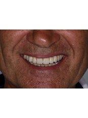 Dental Crowns - Specialist Dental Office Dentalux