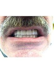 Dental Implants - Dr Lolin