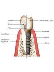 Dental Implants - Orchard Scotts Dental