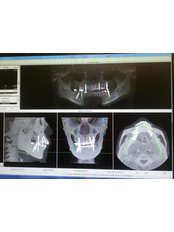3D Dental X-Ray - B9 Dental Centre - Clementi