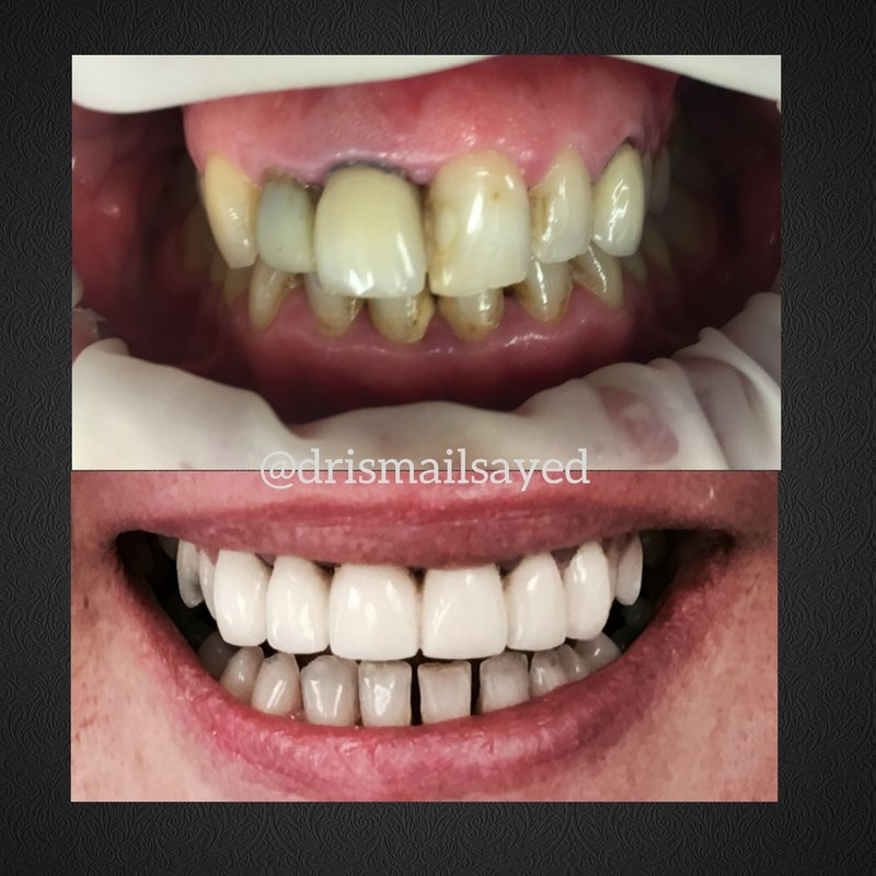 All Smiles Dentist Century City In Cape Town South Africa Read