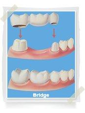 Permanent Bridge - Big Red Tooth Dental Practice