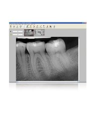 Digital Dental X-Ray - Big Red Tooth Dental Practice
