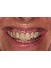 Dental Crowns - Dr. Adé Meyer Cosmetic Dentistry