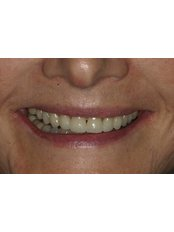 Porcelain Crown - Dr. Adé Meyer Cosmetic Dentistry