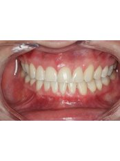 Zoom! Teeth Whitening - Dr. Adé Meyer Cosmetic Dentistry