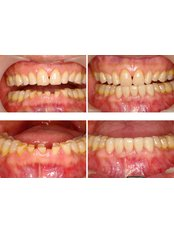 Teeth Contouring and Reshaping - Blanche Hyung Dental