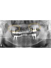 Bone Graft  - Blanche Hyung Dental