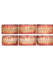 Porcelain Veneers - Blanche Hyung Dental